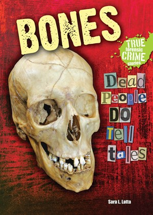 Picture of Bones: Dead People DO Tell Tales
