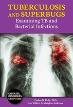 "<h2><a href=""http://www.jasminehealth.com/books/Tuberculosis_and_Superbugs/4304"">Tuberculosis and Superbugs: <i>Examining TB and Bacterial Infections</i></a></h2>"